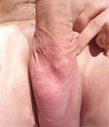 pre-op-penis Vasectomy